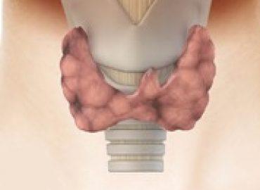 Afectiuni Tiroida