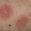 http://medipraxcentrum.ro/s/wp-content/uploads/2017/05/Eczema-100x100.png