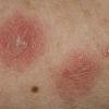 https://medipraxcentrum.ro/s/wp-content/uploads/2017/05/Eczema-100x100.png