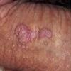https://medipraxcentrum.ro/s/wp-content/uploads/2017/05/condiloamele-genitale-100x100.png